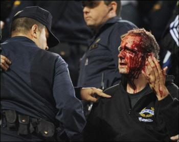 Incidentes en el Calderón