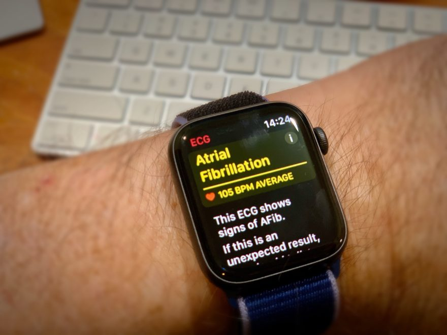 Apple Watch Corazon 2