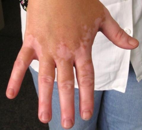 el vitiligo en los niños