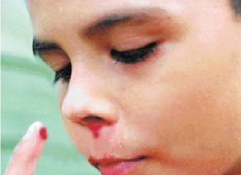 Epistaxis, al niño le sangra la nariz