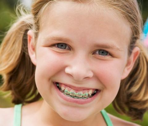la ortodoncia infantil para corregir dientes mal colocados