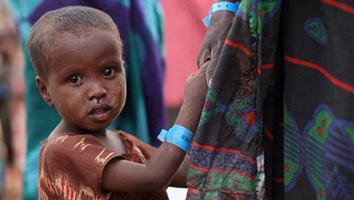 720.000  niños en riesgo de morir por hambre