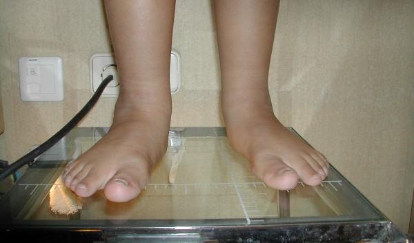 el sobrepeso y los pies planos