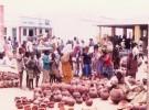 Daños permanentes por desnutrición