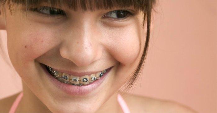 ayuda a llevar ortodoncia