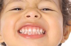 Un 10 por ciento de nuestros niños padecen bruxismo
