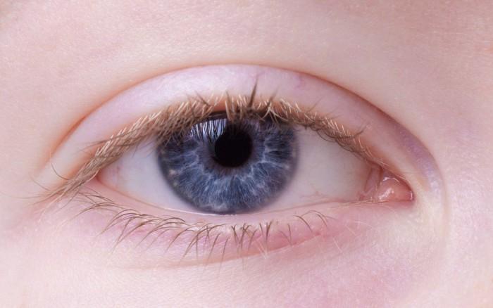 Infeccion en los ojos de los niños