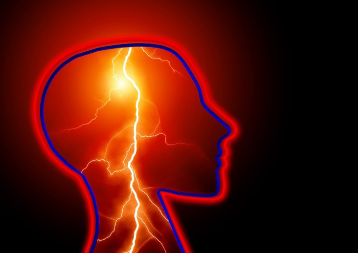 Causas de las convulsiones y epilepsia