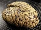 Nuestros cerebros son parecidos a los de los gusanos