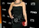 Kelly Osbourne, fractura en la mano tras caerse de la cama de un hotel