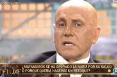Kiko Matamoros muestra su nueva nariz en Sálvame deluxe