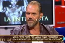 Nacho Vidal cuenta las secuelas físicas de su paso por Supervivientes 2015