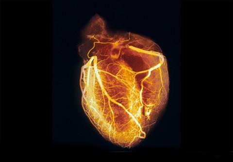 mito-colesterol-detalles-informacion-detalles