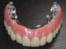 Muere por tragarse la dentadura postiza