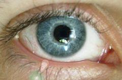 Qué es la miopía y cómo nos afecta