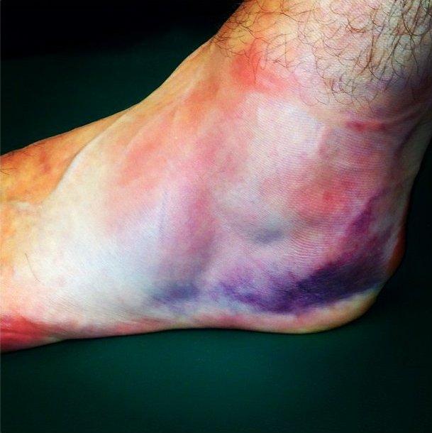 Jack White no cancela su gira a pesar de su lesión en el tobillo