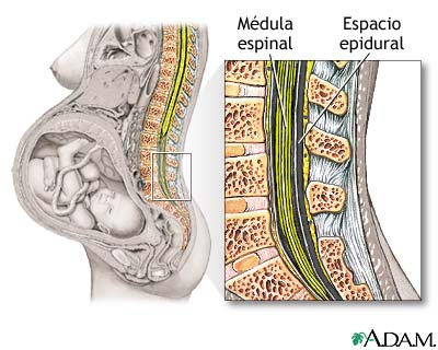 El tratamiento de la hernia intervertebral en bashkirii