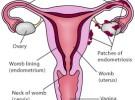 Le recomiendan un embarazo para curar una endometriosis
