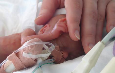 La edad del bebé prematuro