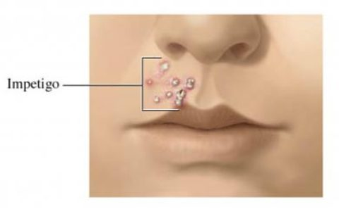 Impétigo, una infección de la piel