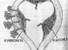 Complicaciones del embarazo: Placenta Accreta, Increta y Percreta