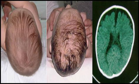 Anomalía del cráneo: Macrocefalia