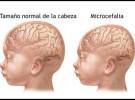 Los recién nacidos con la cabeza muy pequeña deben ser evaluados