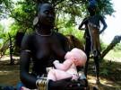 Nacer albino en Tanzania puede costar la vida