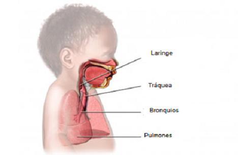 Dificultad respiratoria: Crup