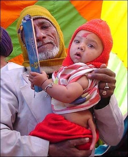 Un bebé hindú nace con una cola en la espalda