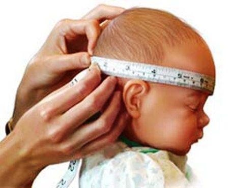 el perímetro craneal en el bebe