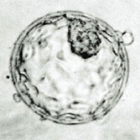 National Geographic: En el vientre materno 3.De la implantación a la sexta semana