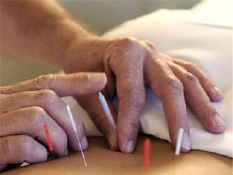 La acupuntura podría ayudar a superar la depresión en el embarazo