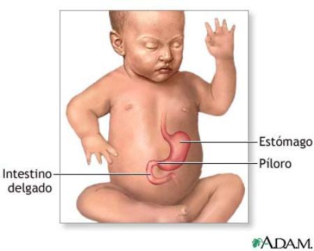 estenosis hipertrofica de piloro o los vomitos incontrolados del bebe