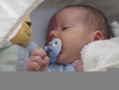 El diario de Pedro, la vida de un bebé con síndrome de Sturge Weber