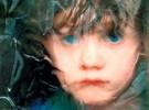El síndrome de Moebius o una vida sin sonrisas