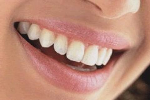 epulis gravidarum mas problemas dentales en el embarazo