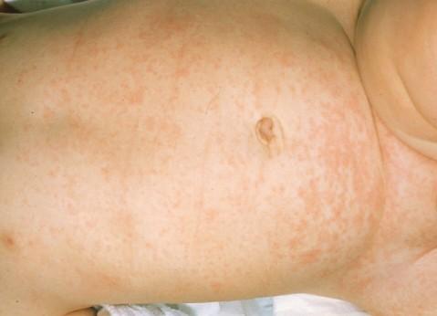 exantema subito o roseola infantil