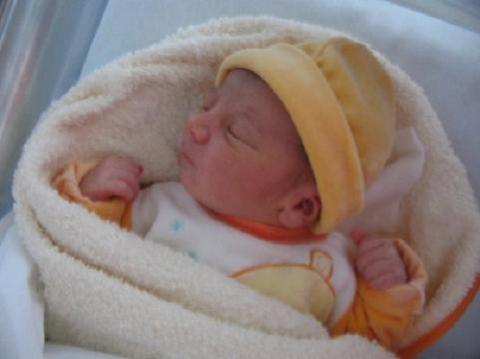 Trastornos al nacer: Pulmón húmedo o taquipnea transitoria del recién nacido