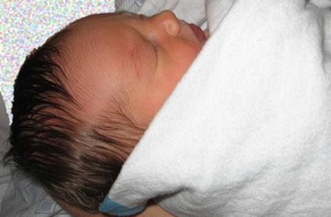 hipotiroidismo congenito en bebes
