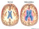 El bebé de la cabeza descomunal tiene una hidrocefalia no tratada