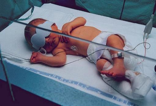 Tratamiento novedoso contra la ictericia neonatal