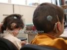 Implante coclear bilateral mejoraría el lenguaje en niños sin audición