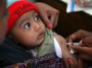 Descartan la relación entre la vacuna DTPa y las convulsiones