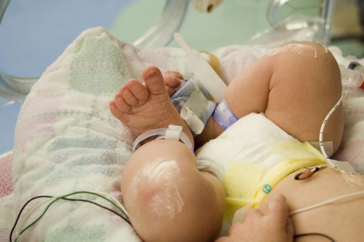 Neonatología: Ubicación, personal y términos utilizados