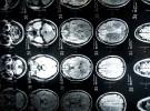 Esclerosis y genética