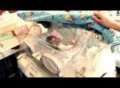 Se estudia un sistema para detectar problemas en prematuros