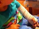 Los huesos fracturados de los bebés se regeneran de forma espontánea