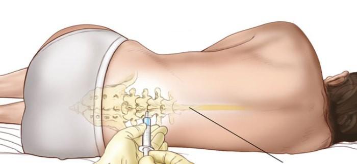 epidural y daño al bebé