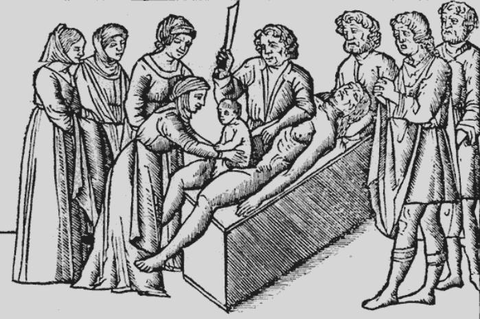historia de la cesarea